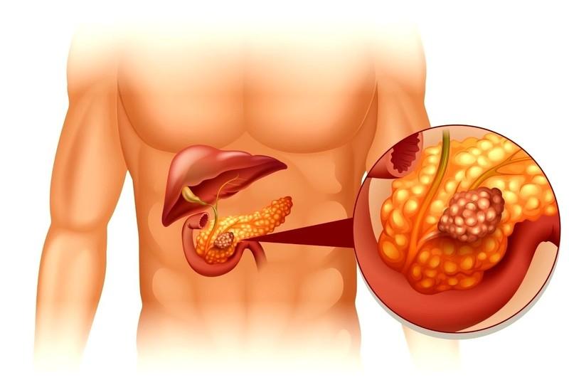 Как болит поджелудочная при диабете симптомы