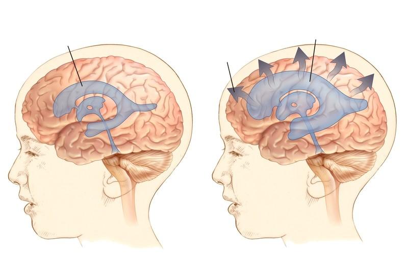 Удар головой с внутричерепным давлением